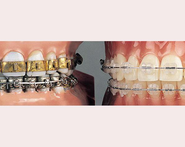 0 Ortodontik Tedavinin Gelişimi